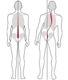 Troubles De La Posture Et Scoliose La Vie Chiropratique Clinique Chiropratique à Québec