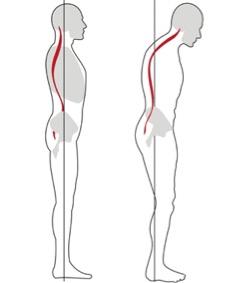 posture_2