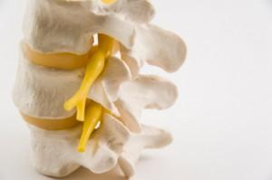 Prévenir l'arthrose